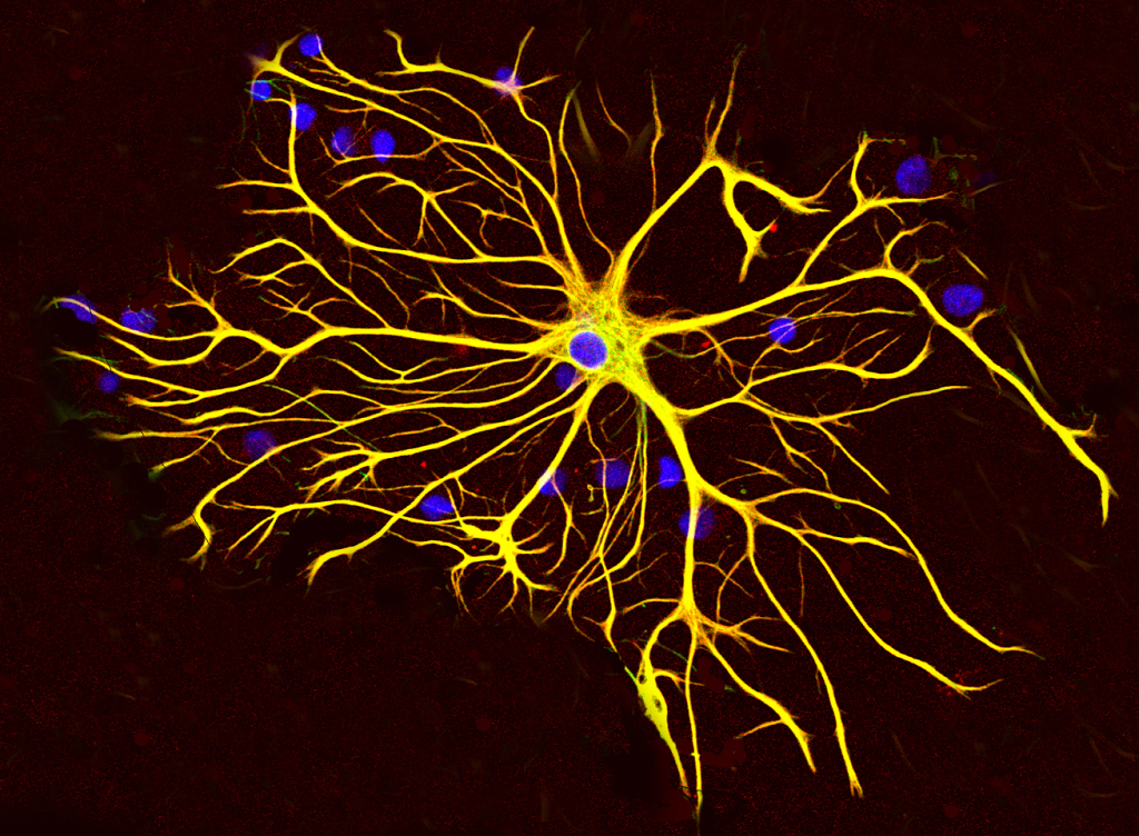 One Whispering Neuron